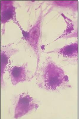 Figura 11- Incubação deEscherichia coliO111 em cultura de células HeLa evidenciando nichos da bactéria com aspecto característico de adesão localizada.
