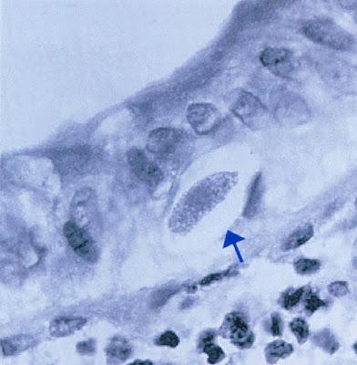 Figura 11- Material de biópsia do intestino delgado evidenciando (seta) a presença de um merozoita maduro deIsospora belliacima da membrana basal do enterócito.