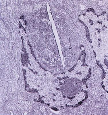 Figura 12- Ultramicrofotografia de células do intestino delgado evidenciando a presença de um merozoita deEnterocytozoon bieneusicomprimindo o núcleo de um enterócito.