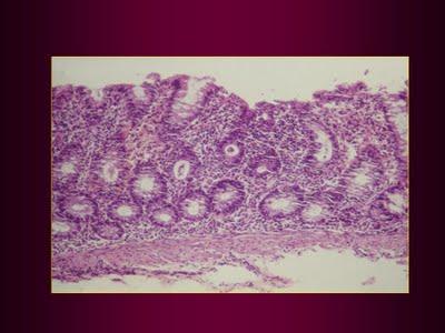 Figura 13. Material de biópsia retal  evidenciando colite e abscesso críptico.