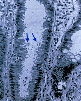 Figura 13- Infecção por Cryptosporidium (setas identificando os inúmeros microorganismos) infiltrado na luz da glândula críptica do intestino grosso.