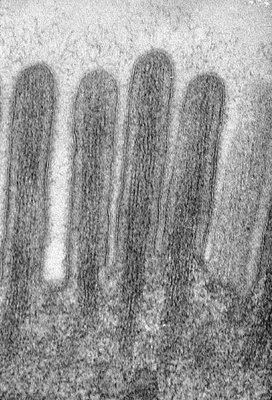 Figura 14. Material de biópsia do intestino delgado em microscopia eletrônica destacando as microvilosidades em maior aumento e as micromiofibrilas que delas emergem e que dão suporte ao muco produzido pelas células califormes.