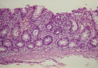 Figura 14- Microfotografia de material de biópsia retal evidenciando lesões histopatológicas características de Colite: solução de continuidade do epitélio colônico, aumento acentuado do infiltrado linfo-plasmocitário na lâmina própria, com presença aumentada de eosinófilos, glândulas crípticas com diminuição de células produtoras de muco, e presença de abscesso críptico com infiltrado de neutrófilos.