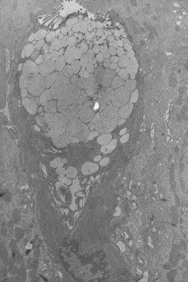 Figura 15. Material de biópsia do intestino delgado em microscopia eletrônica mostrando uma célula caliciforme produtora de muco.