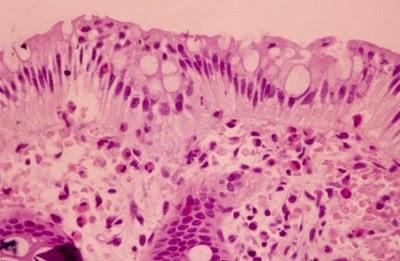 Figura 15- Material de biópsia do reto de paciente portador de Colite Alérgicaevidenciando intensa infiltração eosinofílica no epitélio, lâmina própria e nas glândulas crípticas.