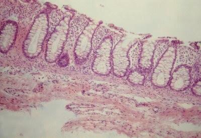 Figura 16- Material de biópsia do reto de paciente portador de Colite Alérgicaem fase de recuperação; houve regeneração do epitélio, infiltrado linfo-plasmocitário na lâmina própria discreto e presença normal de muco nas glândulas crípticas.