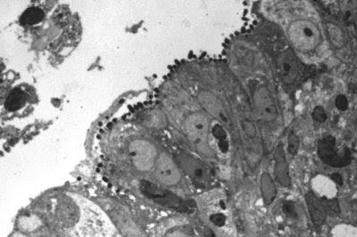 Figura 18. Material de biópsia de intestino delgado em microscopia óptica comum em grande aumento, corte semi-fino, mostrando colônias deEscherichia colienteropatogênica firmemente aderidas à superfície mucosa provocando intensas alterações morfológicas no epitélio intestinal.