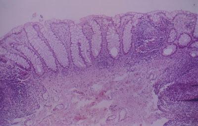 Figura 18- Mucosa retal sem alterações morfológicas evidenciando em ambas as laterais e no centro nódulos linfóides.