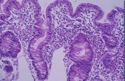 Figura 22- Material de biópsia de jejuno de um paciente portador de Enteropatia Ambiental evidenciando intensa atrofia vilositária e aumento do infiltrado linfo-plasmocitário na lâmina própria.