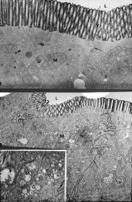 Figura 25. Material de biópsia do intestino delgado em microscopia eletrônica mostrando na figura superior duas células intestinais adjacentes submetidas à perfusão com o marcador macromolecular Horseradish peroxidase representado pela imagem enegrecida confinada à região das microvilosidades (V), L mostra o lumen intestinal. Observar o espaço intercelular (seta) totalmente preservado e a mitocôndria (M) intacta. Na figura inferior resultante da perfusão com sais biliares secundários observa-se que o marcador macromolecular provoca uma ruptura no poro intercelular e a imagem enegrecida estende-se ao longo de todo o espaço intercelular (seta). No detalhe podem ser observadas alterações importantes nas organelas com inchaço e degeneração da mitocôndria (M) e do aparelho de Golgi (G).