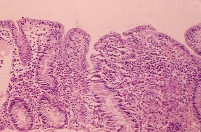 Figura 4. Material de biópsia do intestino delgado de um paciente portador de gastroenteropatia eosinofílica. Observar a atrofia vilositária associada a intenso infiltrado inflamatório linfo-plasmocitário e eosinofílico na lâmina própria da mucosa jejunal.