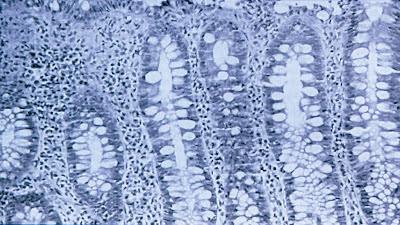 Figura 4- Material de biópsia do intestino grosso obtida na fase aguda da infecção pelo HIV acarretando intensa reação inflamatória linfo-plasmocitária na lâmina própria.