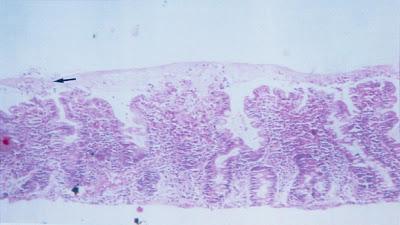 Figura 4- Material de biópsia do intestino delgado de um paciente portados de AIDS evidenciando uma camada muco-fibrino-leuccocitária recobrindo a superfície epitelial (seta) e também uma solução de continuidade (úlceração) do epitélio do intestino delgado no topo das vilosidades.