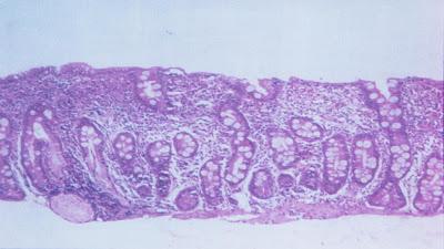 Figura 5- Material de biópsia de um paciente portador de AIDS evidenciando atrofia vilositária sub-total com hiplerplasia das glândulas crípticas e intenso infiltrado inflamatório linfo-plasmocitário na lâmina própria.