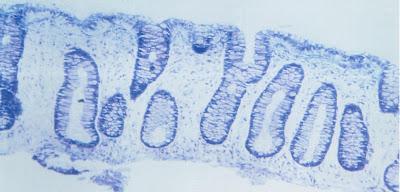 Figura 7- Material de biópsia do intestino grosso evidenciando importante depleção do infiltrado linfo-plasmocitário na lâmina própria.
