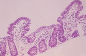 Figura 8- Fotografia em maior aumento de espécime de intestino delgado obtido por biópsia; notar o espaço nitidamente aumentado entre 2 vilosidades adjacentes.