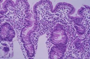 Figura 9- Fotografia em aumento maior de espécime de intestino delgado obtido por biópsia demonstrando atrofia vilositária subtotal e intenso infiltrado linfo-plasmocitário na lâmina própria.