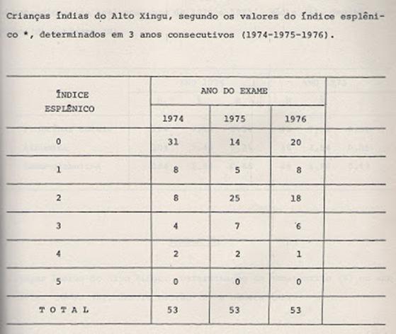 Tabela 1- Valores dos índices esplênicos detectados ao exame clínico das crianças índias estudadas.