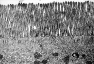 Figura 26- Material de biópsia do intestino delgado normal de rato. Trata-se de um enterócito em cuja porção apical visualiza-se a região das microvilosidades, e, já no interior do citoplasma podem ser vistas diversas organelas, tais como: mitocôndrias, retículos endoplasmáticos com seus ribossomos acoplados, bem como corpos multivesiculares.