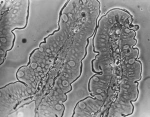 Figura 15- Microfotografia em microscópio de contraste de fase mostrando 2 vilosidades jejunais digitiformes aonde podem ser visualizadas as células epiteliais cilíndricas e as células califormes. Na superfície mais externa das vilosidades, na região das microvilosidades, nota-se um contorno enegrecido que corresponde à presença do produto de reação da HRP (macro-molécula proteica).