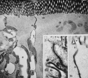 Figura 16- Ultramicrofotografia de 2 enterócitos adjacentes de uma preparação perfundida com DCh. O produto de reação da HRP (em negro) é encontrado sobre as microvilosidades (v) e no espaço intercelular (e). A mitocôndria (m) aparece morfologicamente intacta. No detalhe, Figura 1a, o produto de reação da HRP (negro) é encontrado ao longo de todo o espaço intercelular (e) inclusive com ruptura da zona da junção firme (t). Na Figura 1b o produto de reação da HRP (negro) preserva a região da junção firme.