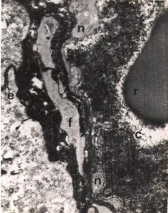 Figura 19- Ultramicrofotografia de uma preparação perfundida com Ch. Nota-se o produto de reação da HRP (negro) no interior de um capilar venoso da lâmina própria (c), desde o espaça intercelular (e). Notar em (r) uma hemácia e em (f) um fibroblasto