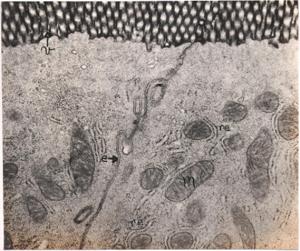 Figura 21- Ultramicrofotografia de 2 enterócitos adjacentes de uma preparação perfundida com TCh. O produto de reação da HRP (negro) encontra-se inteiramente confinado na região das microvilosidades (v). Notar que o espaço intercelular (e) encontra-se praticamente desprovido do produto de reação da HRP e que as mitocôndrias (m) e os retículos endoplásmicos (r) encontram-se totalmente intactos e preservados.