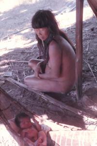 Figura 13- Recém-nascido de poucos dias cuidado pela mãe, mas já recebendo aleitamento natural.