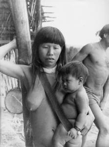Figura 15- Criança maior mas ainda recebendo aleitamento materno.