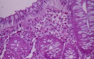 Figura 2- Microfotografia da mucosa colônica evidenciando infiltrado eosinofílico permeando o epitélio, na lâmina própria e nas glândulas crípticas.