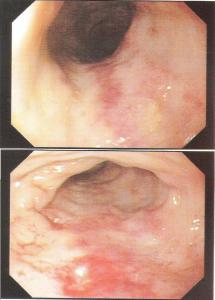 Figura 3- Mucosa colônica evidenciando intensa hiperemia.