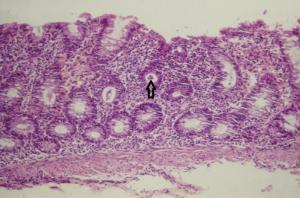 Figura 4- Microfotografia da mucosa colônica evidenciando erosão do epitélio, aumento do infiltrado linfo-plasmocitário na lâmina própria, diminuição do conteúdo de muco nas glândulas crípticas e presença de polimorfonucleares no interior da glândula críptica (abscesso críptico - seta).