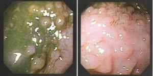 Figura 5- Mucosa colônica evidenciando a presença de nódulos linfóides hiperplasiados.