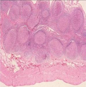 Figura 6- Microfotografia em microscopia óptica comum em grande aumento da mucosa colônica evidenciando a presença de inúmeros nódulos linfoides hiperplasiados na lâmina própria.