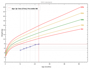 Gráfico 1- Evolução do gráfico ponderal do paciente antes e após a intervenção dietética.