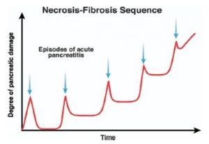 Figura 3- Conceito de necrose-fibrose para a lesão pancreática progressiva. Episódios repetidos de PA com necro-inflamação resultam em um aumento residual da injúria ao pâncreas, que a longo prazo acarretam dano irreversível à glândula, caracterizado por atrofia acinar e fibrose.