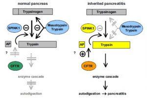 Figura 6- Modelo da pancreatite hereditária. No pâncreas normal (esquerda) a tripsina que é prematuramente ativada no interior do pâncreas é inibida pelo SPINK1, e, em uma segunda linha pela tripsina e pela mesotripsina, o que previne sua autodigestão. Na pancreatite hereditária (direita), mutações no PRESS1 ou no SPINK1 acarretam um desequilíbrio das proteases e suas inibidoras, resultando em autodigestão. O papel do CFTR é pouco conhecido.