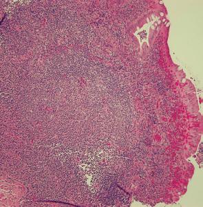 Figura 1- Visão de uma placa de Peyer em microscopia óptica comum, médio aumento, localizada na lâmina própria da mucosa ileal.