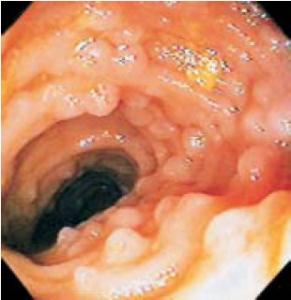 Figura 3- Visão endoscópica da mucosa ileal evidenciando os nódulos linfoides hiperplasiados.