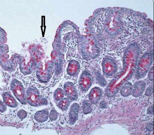Figura 7- Material de biópsia do intestino delgado mostrando a presença de trofozoitas de Giardia na luz do intestino próximos a uma vilosidade diminuída em altura (seta).