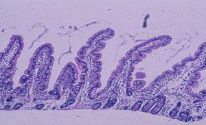 Figura 2- Aspecto morfológico da mucosa do intestino delgado normal: vilosidades digitiformes, enterócitos cilíndricos com núcleo em posição basal e glândulas crípticas normais. Relação vilosidade/cripta 5:1.