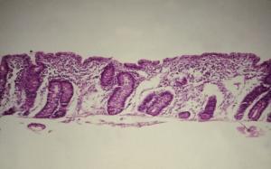 Figura 1- Lesão característica da DC: atrofia vilositária subtotal, transformação culboidal dos enterócitos e hipertrofia das glândulas crípticas.