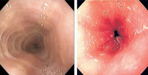 Figura 1- Lesões macroscópicas características da EEo: à esquerda observa-se traqueização esofágica, e à direita erosão e sulcos no esôfago distal.