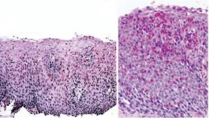 Figura 2- Microscopia óptica comum da mucosa esofágica: à esquerda aumento médio evidenciando intenso infiltrado eosinofílico, e, à direita em campo de grande aumento observa-se a formação de verdadeiro abcesso eosinofílico.