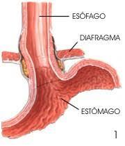 Figura 6- Barreiras anti-refluxo.