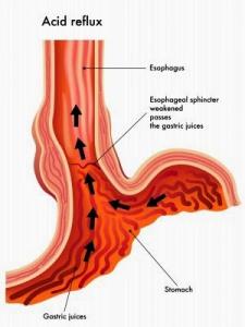 Figura 5- Representação esquemática do refluxo ácido.