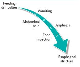 Figura 2- Representação esquemática dos principais sintomas da EEo.