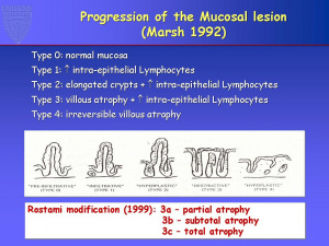 Figura 3A- Critérios de Marsh para o diagnóstico de DC.