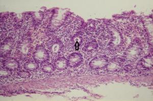 Figura 2- Microfotografia da mucosa colônica evidenciando erosão do epitélio, aumento do infiltrado linfo-plasmocitário na lâmina própria, diminuição do conteúdo de muco nas glândulas crípticas e presença de polimorfonucleares no interior da glândula críptica (abscesso críptico - seta)