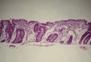 Figura 7 - Microfotografia de biópsia do intestino delgado, em microscopia óptica comum, grande aumento, de paciente portador de Doença Celíaca evidenciando atrofia vilositária total, hiperplasia das glândulas crípticas e aumento dos linfócitos intra-epiteliais.